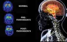 New Study Finds Treatment For Parkinson Disease.