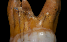DNA Analysis Of Denisovan Molars Gives Clues On Ancient Human Relatives
