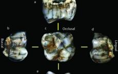 Hominin Molar