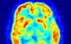 Transaxial slice of the brain of a 56 year old patient (male) taken with positron emission tomography (PET).