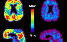 Brain Scans of Patients with AD