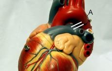 Heart frontally PDA