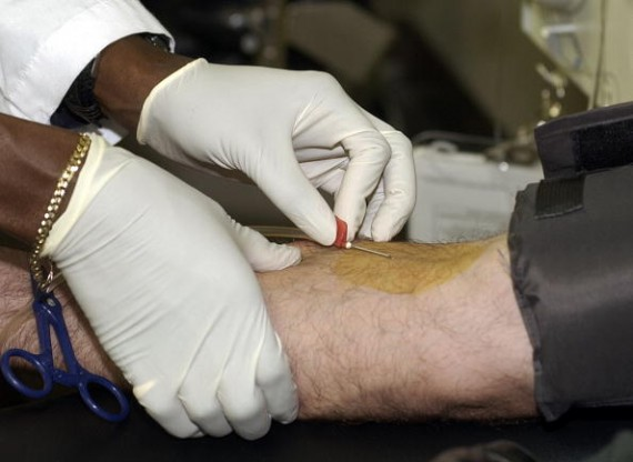 Antibody therapy for HIV