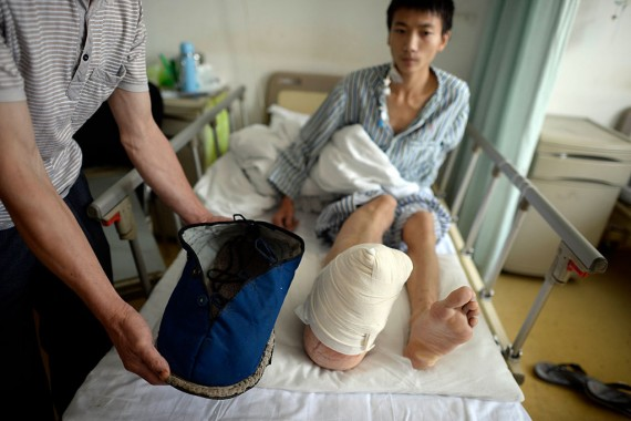 Liu Huichang Suffers From Gigantism In Leg And Foot