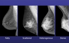 Breast Cancer Treatment And Bomb Detection Can Now Be Done Using X-Rays