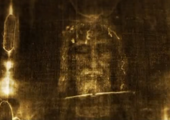 The X-Ray Image Of The Face Of Jesus On The Shroud Of Turin