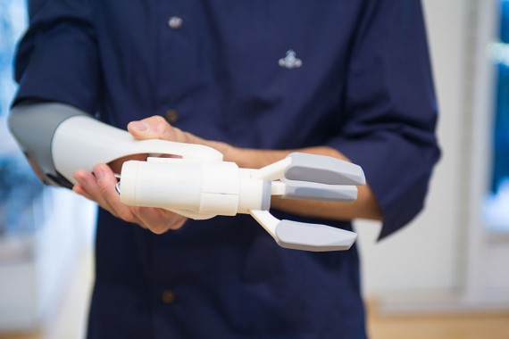 3D-Printed Prosthetic Arm Developed In Japan