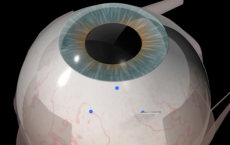 Retinal Implant Trial At John Radcliffe Hospital, Oxford