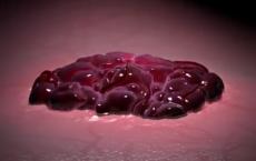 Targeting Cancer Cell Metabolism