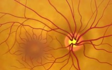 Animation: Detecting Glaucoma Through A Dilated Eye Exam