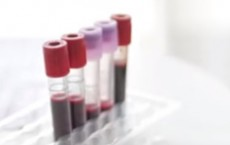 New Blood Test Determines Whether Cancer Treatment Is Working
