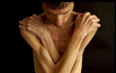 Like Women, Even Men and Boys Suffer From Anorexia