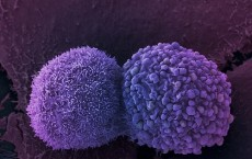 New drug stops rushing cancer cells, slow and steady healthy cells unharmed