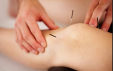 Acupuncture Does Not Improve Chronic Knee Pain in Older Adults