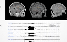 Does Stimulation of the Brain's Dorsal Anterior Insula Trigger Ecstasy? (IMAGE)